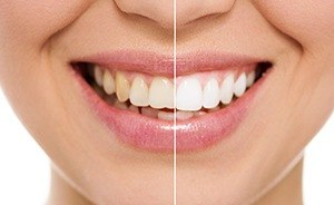 Closeup of teeth before and after whitening