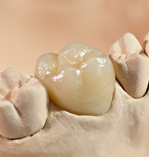 Porcelain crowns prior to placement