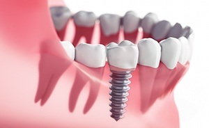Aimation of implant crown placement
