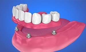 Animation of implant dentures