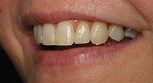 Six Month Smiles treatment in Merrimack