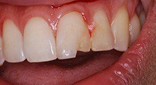 Shawn's tooth after treatment