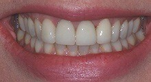 Closeup of Debbie's falwelssly repaired smile