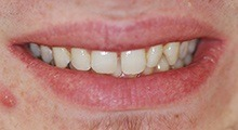 FAQ - What are veneers? | Dental Designs of New England ...
