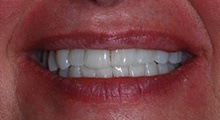Invisalign from Merrimack dentist, Dr. Shetty