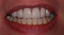 After porcelain veneers from Dental Designs of New England