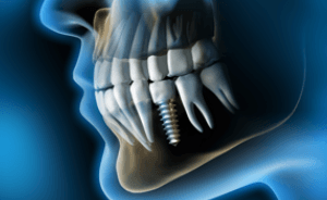 X-ray of single implant