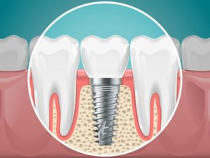 dental implant post providing jawbone preservation in Merrimack