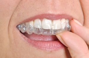 invisalign in merrimack straightens teeth subtly