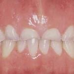 Worn down teeth