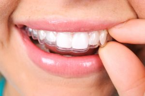How can you benefit from Invisalign in Nashua?