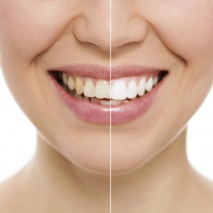 merrimack teeth whitening